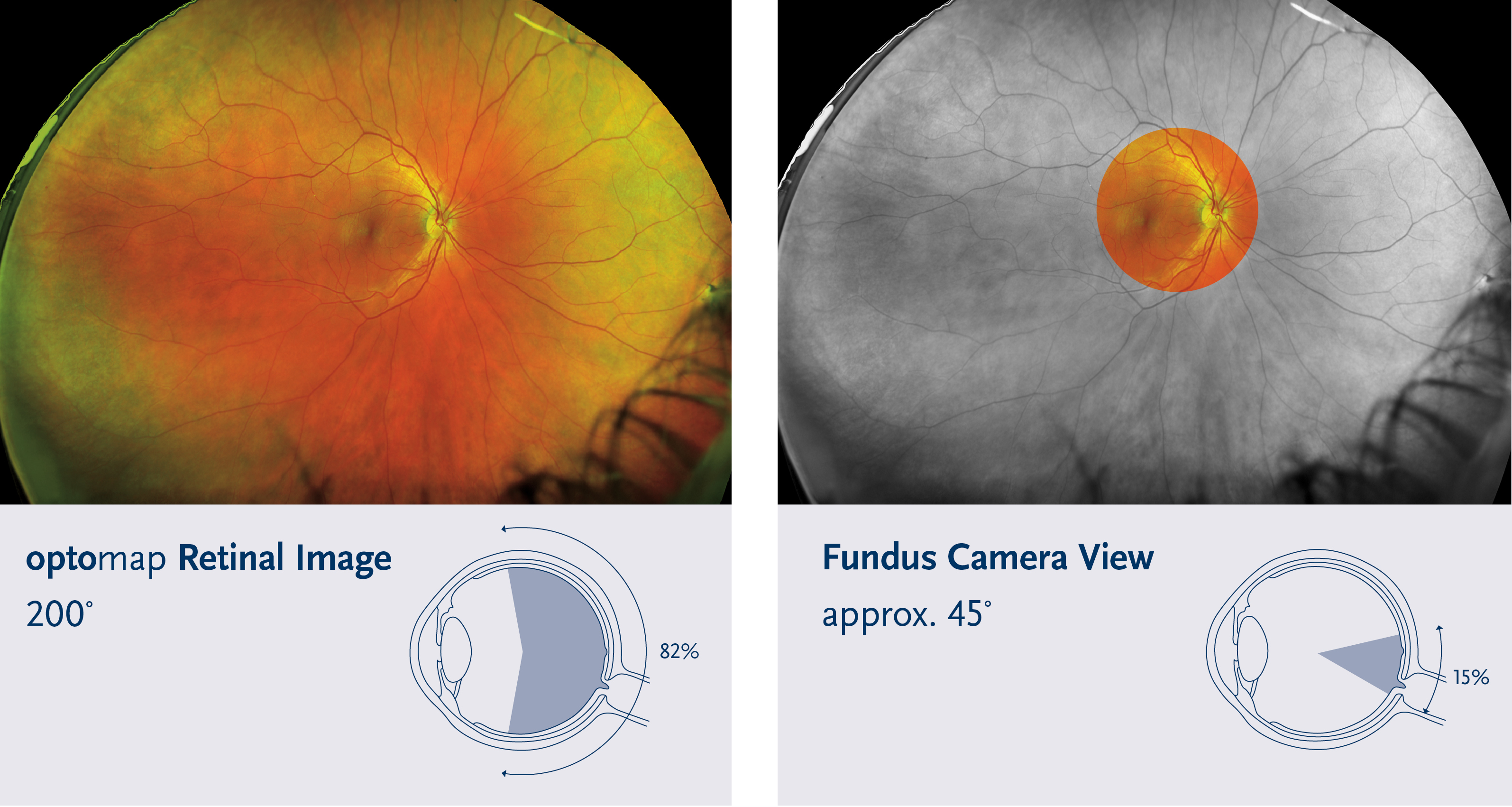 comparison between an optomap and traditional retinal imaging machine
